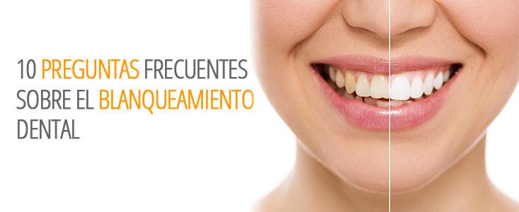 10 Preguntas frecuentes sobre el tratamiento de blanqueamiento dental con respuesta