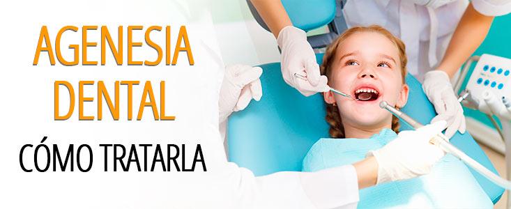 ¿Qué es la agenesia dental y cómo tratarla?
