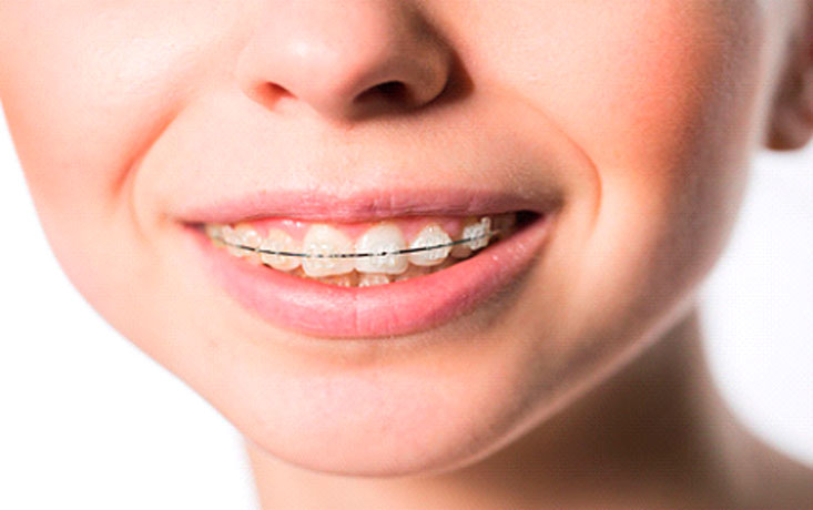 Soluciones al apiñamiento dental