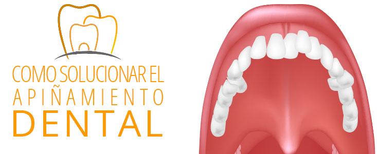 Cómo solucionar el apiñamiento dental con un antes y después sorprendente