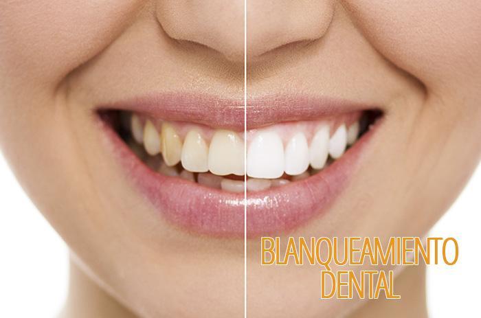 blanqueamiento-dental-clinica-dental-tarragona-tuces
