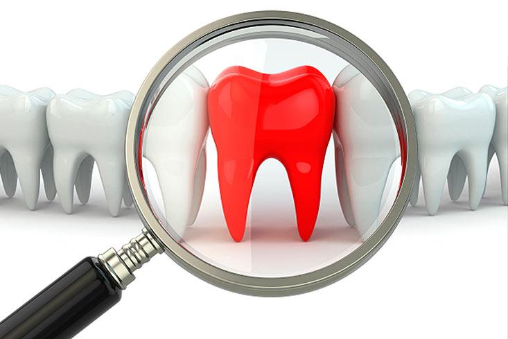 Consejos básicos para calmar el dolor de un diente roto