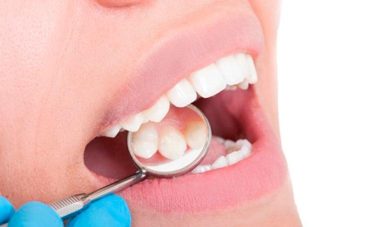 diferencias entre curetaje dental y limpieza convencional de boca