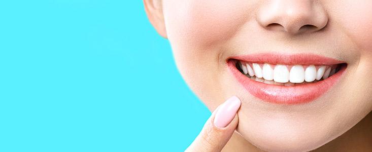 ¿Qué son las carillas dentales y cómo mejorarán tu sonrisa?