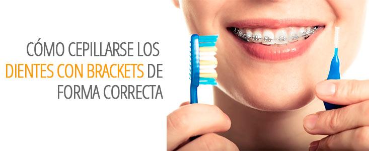 Cómo cepillar tus dientes con brackets de forma correcta