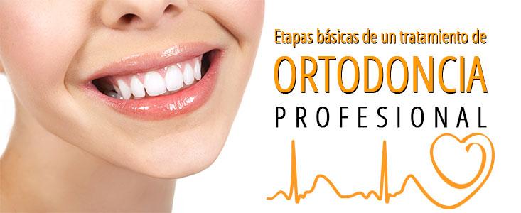 Las etapas básicas de un tratamiento de ortodoncia profesional