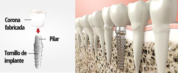 Implantes dentales - Tuces, clínica dental Tarragona