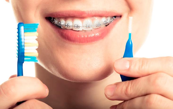 Claves para el correcto cepillado dental con brackets