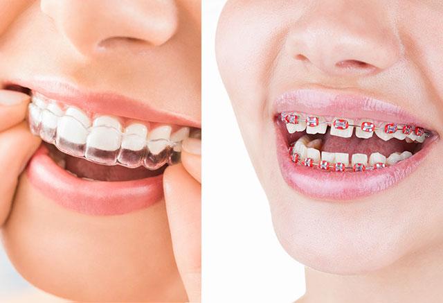 Ortodoncia con brackets transparentes