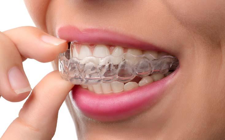 Pautas para prevenir el desgaste dental