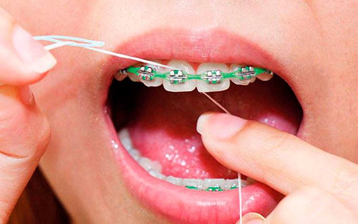 Seda dental y enjuague bucal