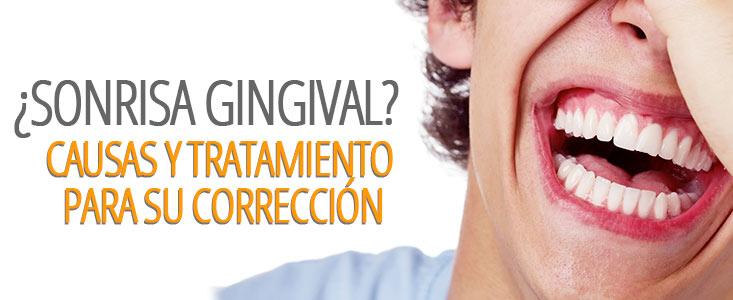 Guía de la sonrisa gingival: síntomas, causas y tratamientos