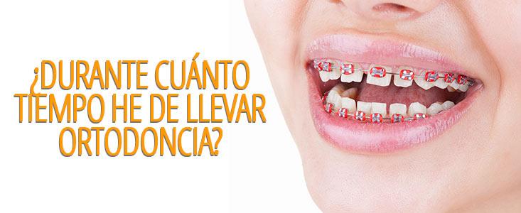 ¿Durante cuánto tiempo he de llevar ortodoncia?