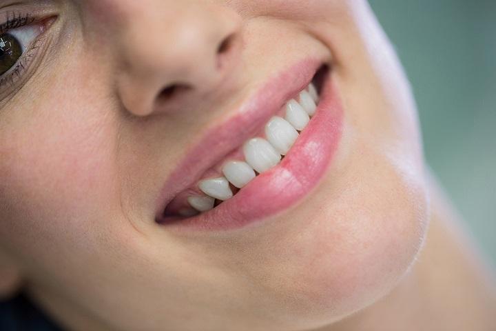 Tratamientos efectivos para dar solución a la sonrisa gingival