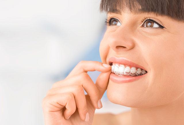 Ventajas que tiene la ortodoncia transparente